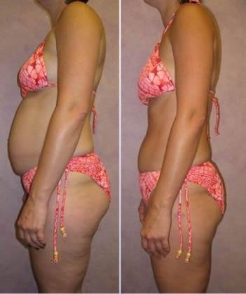 недельная диета чтобы скинуть 10 кг