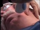 Процедура омоложения на Palomar Lux 1540