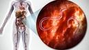 Инфаркт в 40 лет из за ГЛИСТОВ Вас НАВСЕГДА Избавит от ПАРАЗИТОВ Отвар из…