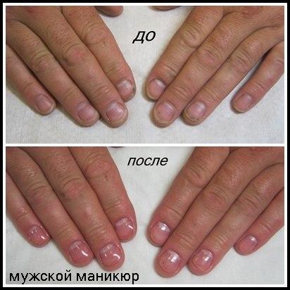 Маникюр на обгрызанные ногти