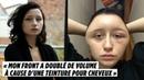 У француженки из за краски для волос раздулось лицо