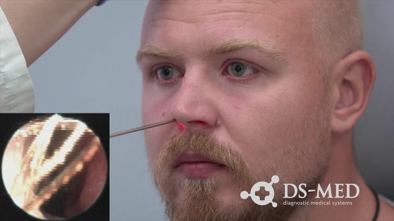 Эндоскопия при помощи Dr.Camscope на ЛОР-комбайне UE-3000