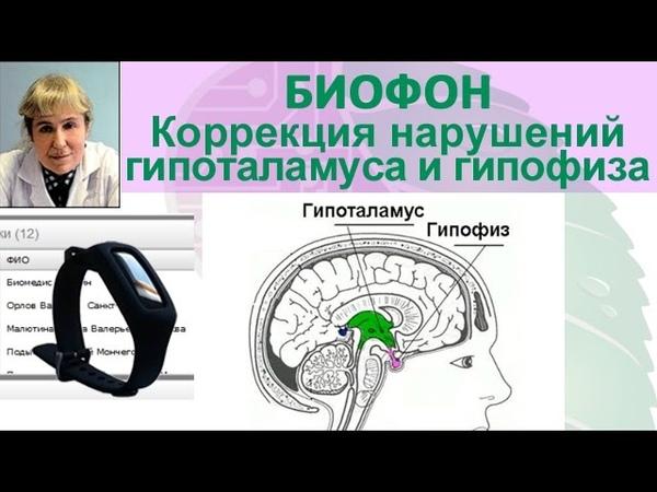 Приборы БИОМЕДИС   BIOMEDIS. БРТ, Биофон. Коррекция нарушений гипоталамуса и гипофиза
