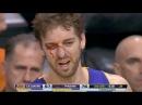 Pau Gasol Gets Hits on the Face & Bleeds | Lakers vs Suns | December 23, 2013 | NBA 2013-2014