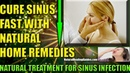 How To Cure Sinus Permanently At Home [ Relieve Sinus Congestion Headache Fast ]