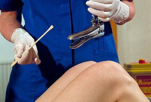 Пап-мазок - это диагностический инструмент, используемый для выявления ранних признаков рака шейки матки и ВПЧ.