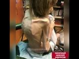 Самая худая девочка россии приехала лечиться в Нижний Новгород от анорексии - Типичный Нижний Новгород