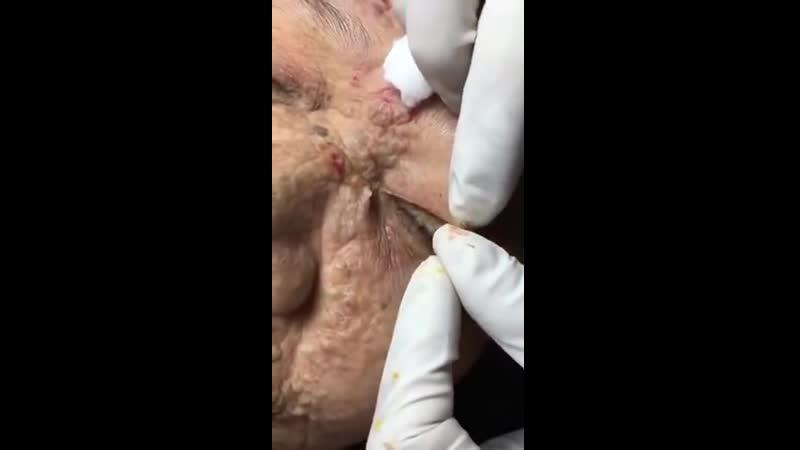 BLACKHEADS AND ACNE REMOVAL Mụn đầu đen và mụn bọc Chuyên Gia Trị Mụn 61