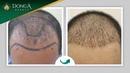 Cấy tóc cho nam giới - Khắc phục hói đầu, rụng tóc