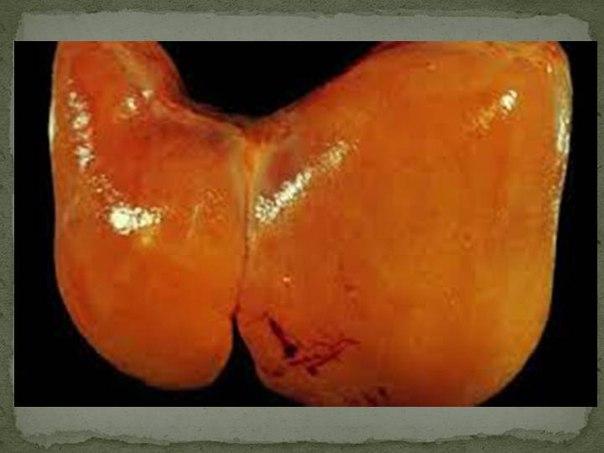 как лечитт крупнокапельную жировую дистрофию печени бесплатно образец договора