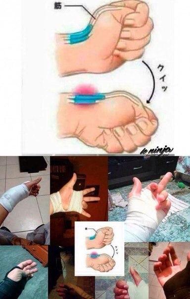 Как сделать перелом руки в домашних условиях