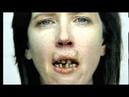 Пачка зубы Ролик против куренияТы всё ещё куришь сигареты