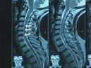 Laser reconstruction of intervertebral discs © Лазерная реконструкция межпозвонковых дисков
