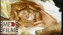 Трепанация черепа костнопластическая © surgical opening into the skull