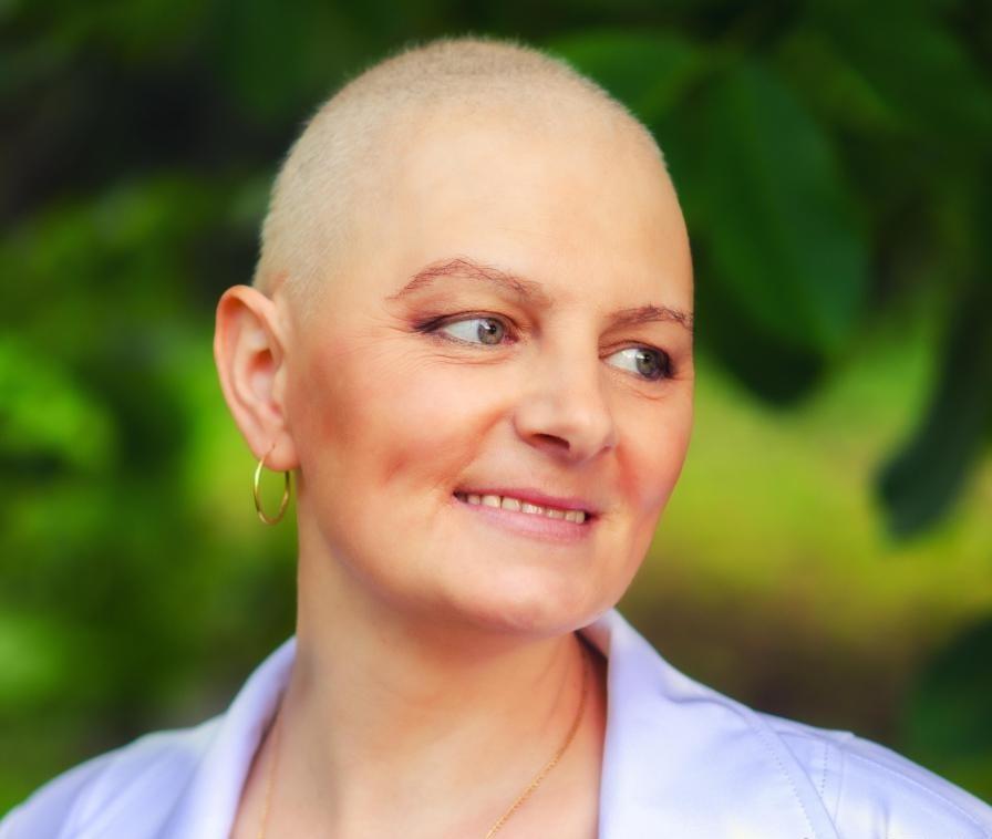Химиотерапия, которая является одним из самых предписанных методов лечения в медицинской онкологии, может вызвать потерю волос у некоторых больных раком.
