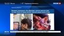 Новости на Россия 24 Новый вброс девочку раненную солдатами Асада загримировали в Аль Джазире