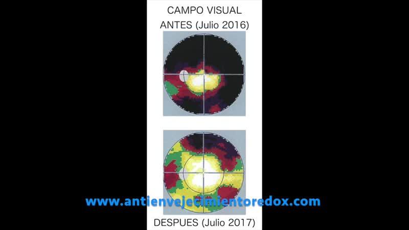 Testimonio ASEA Recuperación del Campo Visual con Moléculas de Señalización Redox