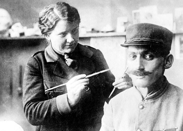 Как солдатам Первой мировой войны закрывали ужасные раны лица На помощь солдатам, изуродованным во время Первой мировой войны, пришел молодой ЛОР из Новой Зеландии, Гарольд Джиллис. Он увидел