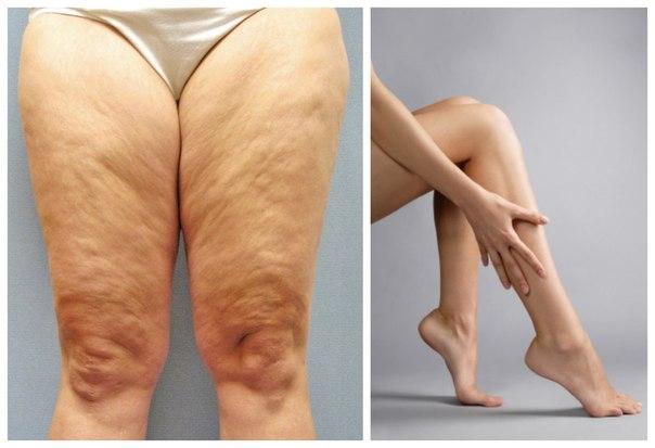 как можно убрать жир ног