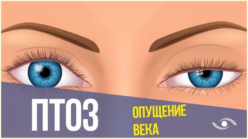 Птоз верхнего века (нависшее веко). Лечение птоза в Новосибирске!
