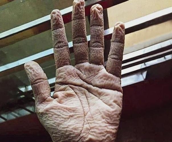Врач из Индии показал, как выглядит его рука после 10-часового ношения перчаток