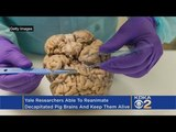 Scientists Bring A Severed Brain Back To Life, Sparking Ethical Debate