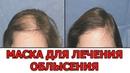 Эта маска для роста волос СПОСОБНА ЛЕЧИТЬ ОБЛЫСЕНИЕ У МУЖЧИН И ЖЕНЩИН