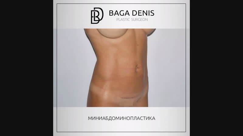 Результат миниабдоминопластки, пластический хирург Бага Д.К.