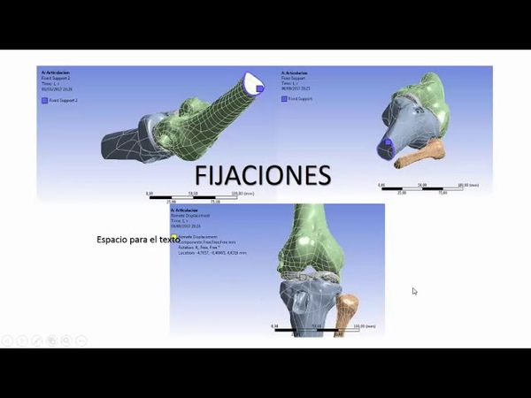 Knee - Estudio biomecánico de la rodilla usando Ansys