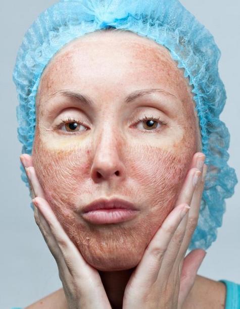 местные лекарства могут вызывать сухость и раздражение кожи в качестве побочного эффекта