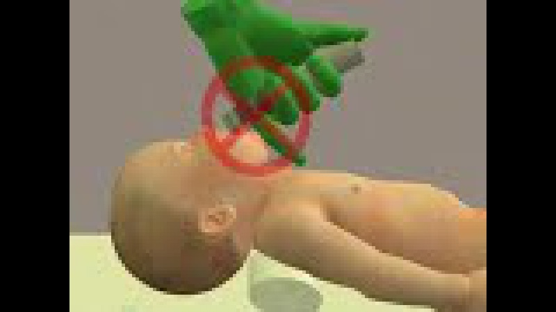 Technique for Neonatal Endotracheal Intubation
