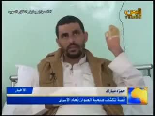 Пленный йеменец, который потерял пальцы рук и ног.