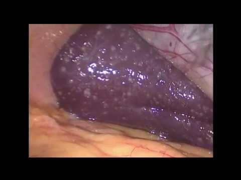 Лапароскопическая холецистэктомия. Биопсия печени.