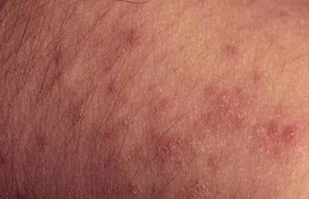 В некоторых случаях реакция на укусы постельных клопов может быть легкой, и в результате сыпь может не потребовать лечения.