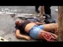 Acidente Grave Carro Esmaga Perna de Mulher