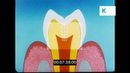 1950s Information Film on Teeth, Dental Hygiene