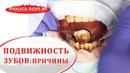 😬 Причины и способы устранения подвижности зубов. Подвижность зубов. Столица. 12