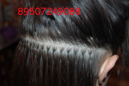 Жжение кожи головы и выпадение волос причины