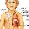 Стимулятор диафрагмального нерва