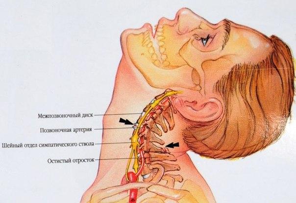 позвоночных артерий,