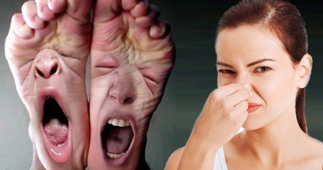 Каковы причины неприятного запаха ног? Почему ноги воняют?
