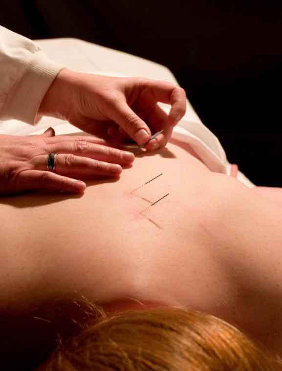 Практикующие традиционной китайской медицины рекомендуют лечить фибромы иглоукалыванием
