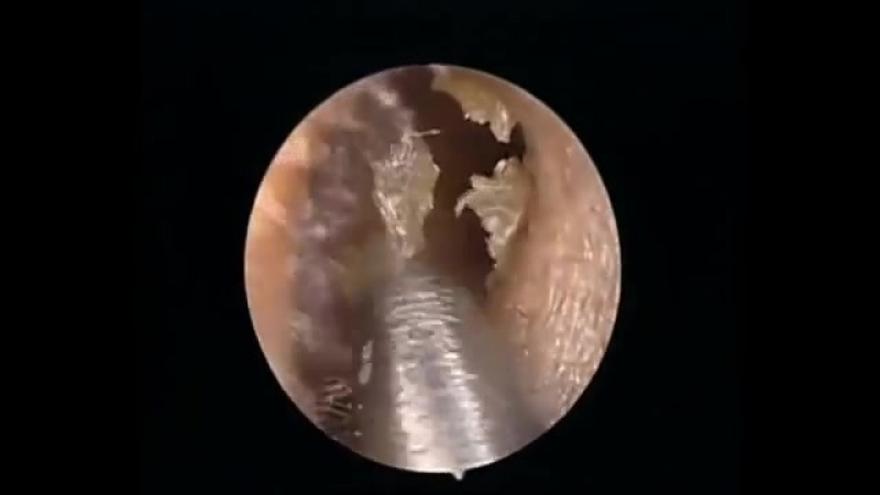 Earwax Cerumen Removal Extraction Dr Xing Pull Out Moment Combo 3 外耳道挖耳屎清理耳垢.mp4