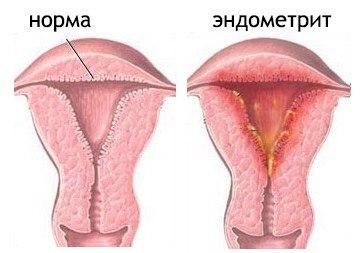 korichnevie-vaginalnie-videleniya-v-norme