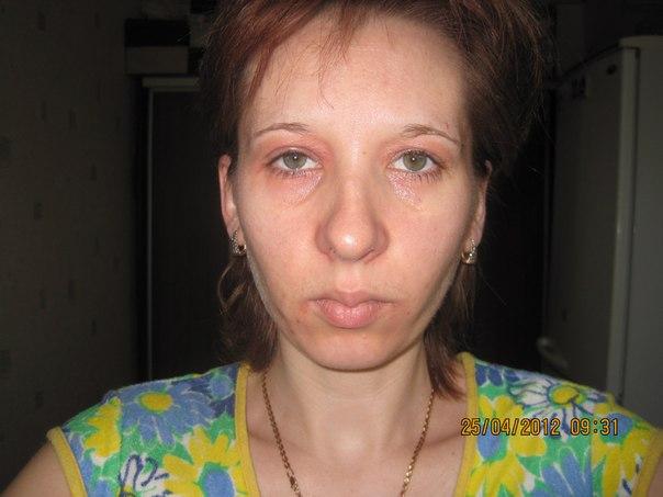 Аллергия вокруг глаз  симптомы лечение фото  Азбука