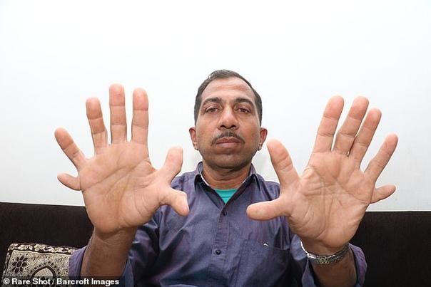 У индийца рекордные 28 пальцев на руках и ногах Индиец Девендра Сутар (Devendra Suthar) родился с полидактилией, то есть с многопальцевостью. При этом у него не просто есть лишние пальцы на