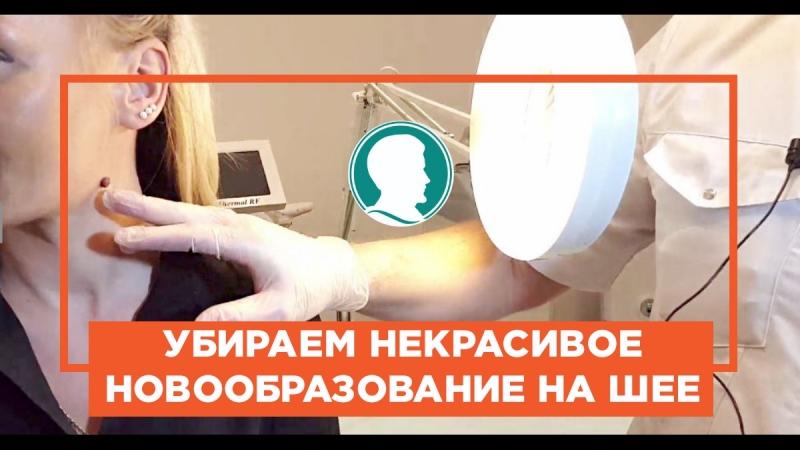 Маша за 3 минуты избавилась от пигментного невуса на шее