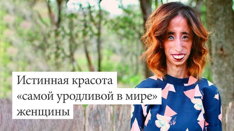 Истинная красота «самой уродливой в мире» женщины (История Лиззи Веласкес)