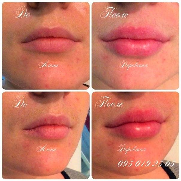 Отек губ после гиалуроновой кислоты форум