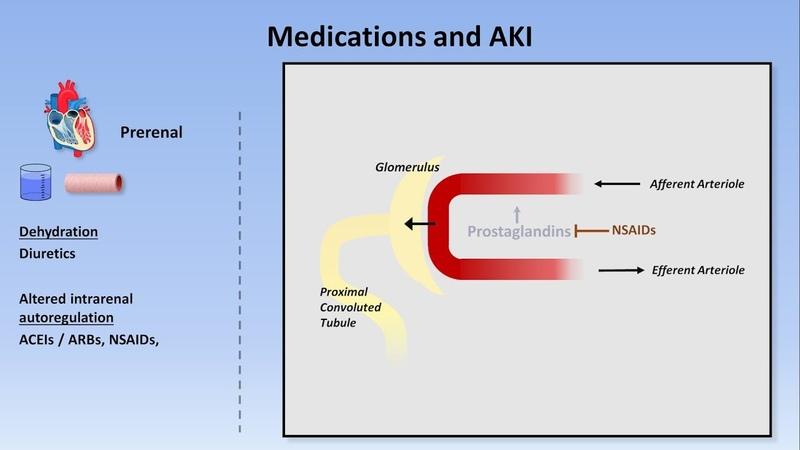 Acute Kidney Injury Part 1 3 Definitions and Etiologies
